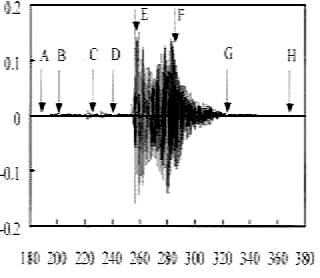 滴が衝突したときの液面と音波の表